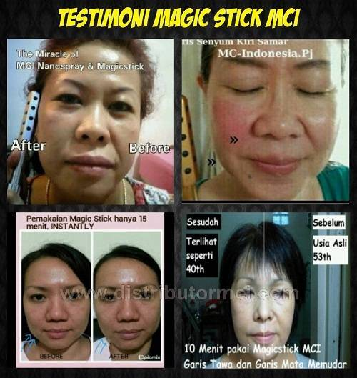 testimoni magic stick, testi magic stick, hasil pemakaian magic stick,